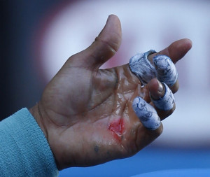 Nadal blistered hands