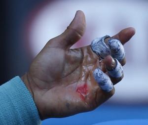 Nadal blistered hands